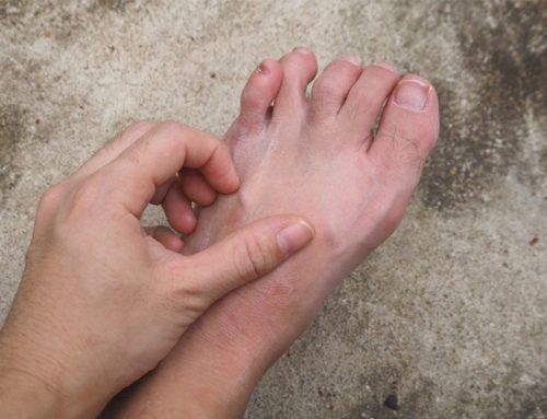 Wat is voetschimmel en hoe kom je er vanaf?